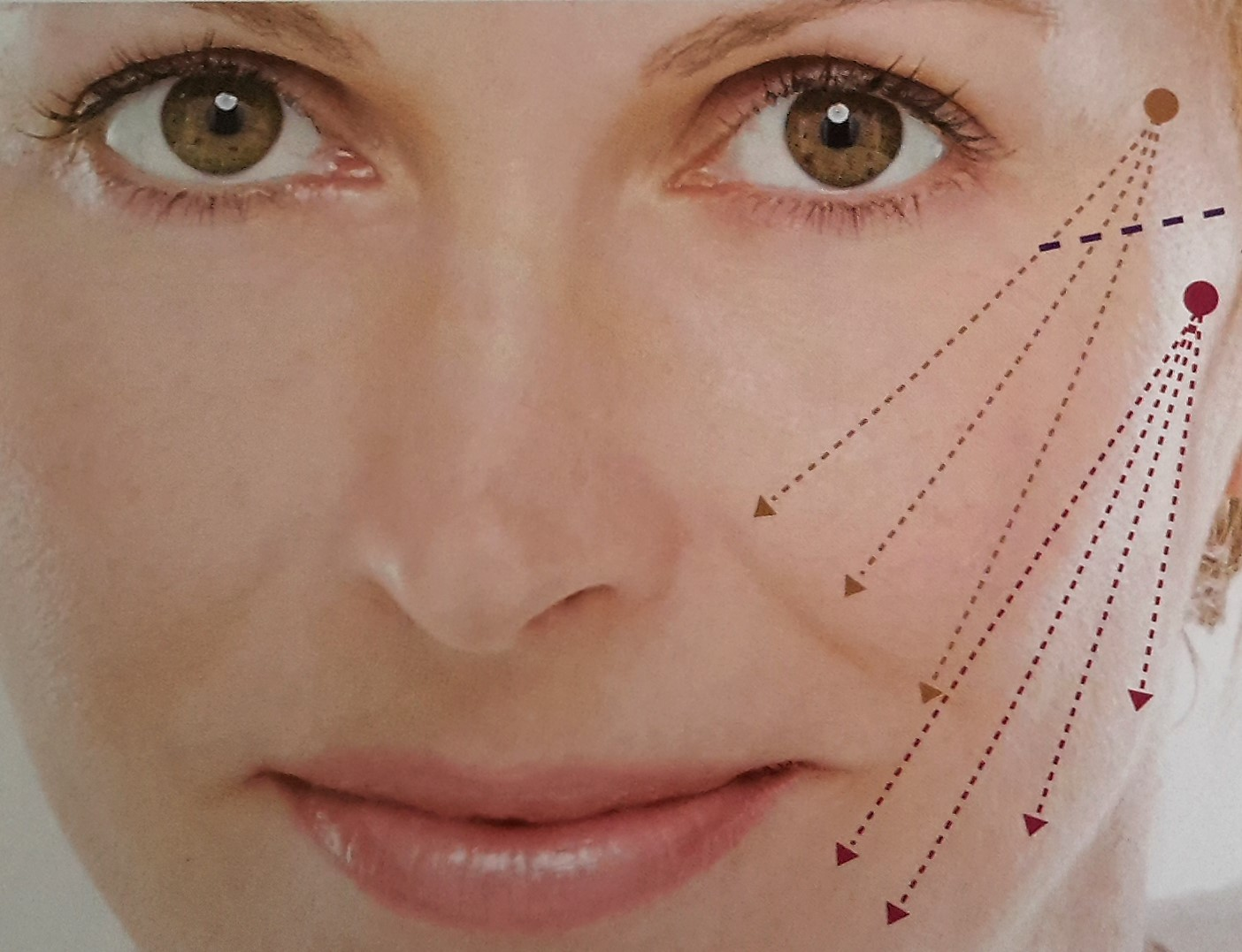MINI NON SURGICAL FACE AND NECK LIFT WITH PDO THREADS - Vanity